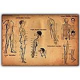 YGKDM Modular Wall Art Canvas Painting Prints Pictures 1 Unidades Puntos de acupuntura Humana Poster Medicine Home Decor Science Framework 60x90cmx1pcs Frame