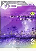心エコー 2020年 06 月号 [雑誌]