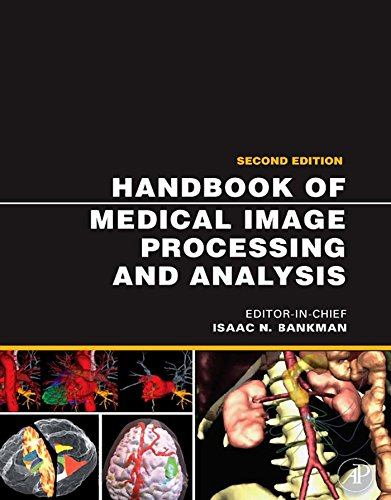 Handbook of Medical Image Processing and Analysis (Academic Press Series in Biomedical Engineering) (English Edition)