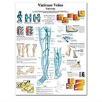 YQQICC 下肢静脈瘤チャートポスター印刷キャンバス絵画壁の写真医学教育の医師のオフィスの教室 - 55x70cmのフレームなし