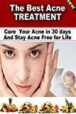 The Best Acne Treatment - Cure Your Acne in 30 days and Stay Acne Free for Life: Cure Your Acne in 30 days and Stay Acne Free for Life (acne solution, ... treatment at home, best acne treatment)