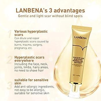 Lanbena Acne Scar Removal Cream Stretch …