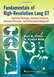 Fundamentals of High-resolution Lung CT: Common Findings, Common Patterns, Common Diseases, and Differential Diagnosis - Brett M. Elicker