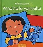 Anna ha la varicella! Ediz. illustrata