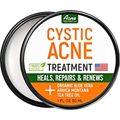 BEST ACNE CREAM - If you are looking for a natural and fast-acting treatment to combat pimples, acne spots, and breakouts you just found it! Extremely effective our acne cream is capable of dealing with even the most complicated cases like cystic acn...