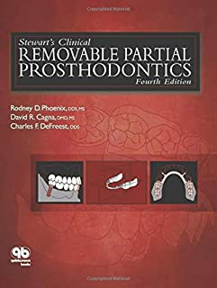 Stewart's Clinical Removable Partial Prosthodontics (Phoenix, Stewart's Clinical Removable Partial Prosthodontics)