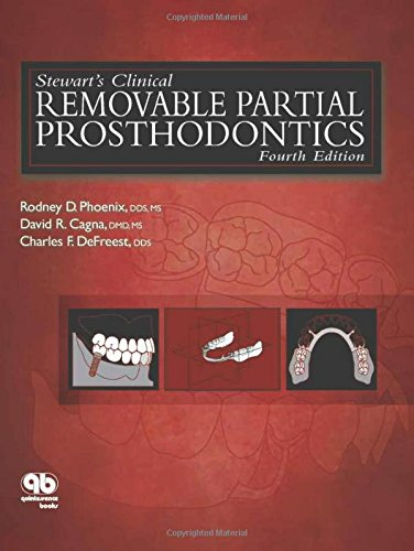 A4qebook stewarts clinical removable partial prosthodontics easy you simply klick stewarts clinical removable partial prosthodontics phoenix stewarts clinical removable partial prosthodontics book download link fandeluxe Gallery