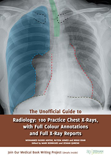 The Unofficial Guide to Radiology: 100 Practice Chest X-Rays, with Full Colour Annotations and Full X-Ray Reports (Unofficial Guides to Medicine) (English Edition)