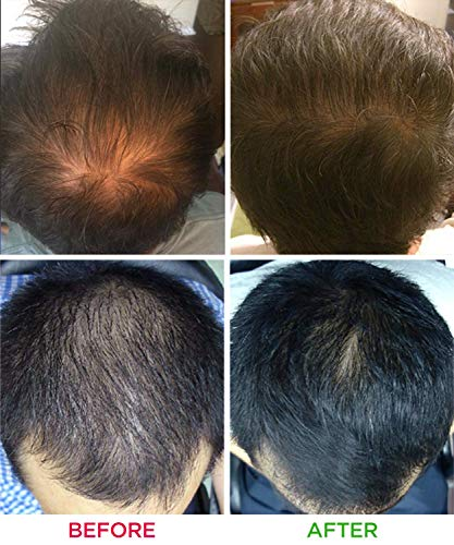 iRestore Essential Laser Hair Growth Before and After