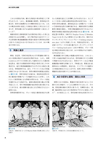 『AO法骨折治療[英語版Web付録付] 第3版』の5枚目の画像