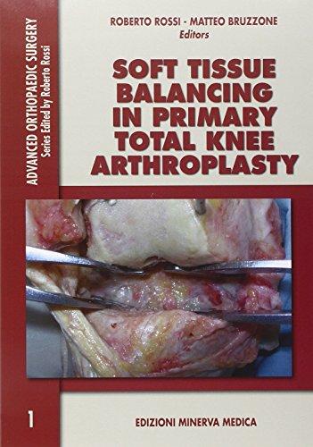 Soft tissue balancing in primary total knee arthroplasty (Advanced Orthopaedics Surgery)