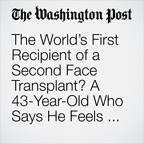 The World's First Recipient of a Second Face Transplant? A 43-Year-Old Who Says He Feels 22 Again. copertina
