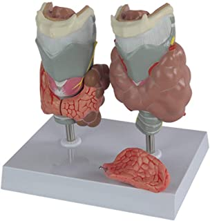 YXZQ Human Anatomy Science Models -Thyroid Pathology Model,Magnified Human Thyroid Diseased Anatomy Model, Endocrine Disea...