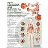 Understanding Inflammatory Bowel Disease (Ibd) Anatomical Chart