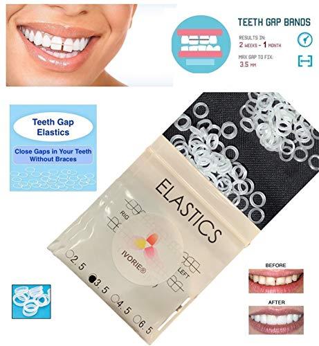 IVORIE Teeth Gap Bands Orthodontic