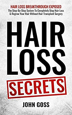 Hair Loss Secrets: Discover How To Completely Stop Hair Loss & Regrow Your Hair Without Transplant Surgery