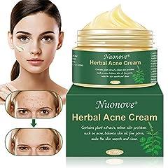 Acne Crème, Anti Pimple Cream, Acne Remover Cream, Acne Scar Cream, Anti Acne Cream, Balance Water and Oil, Helpt Face Acne Verwijderen, Pimples Anti Acne Cream regenereert de huid, 100g *