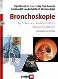 Bronchoskopie: Techniken ? Krankheitsbilder ? Therapieoptionen - Ingrid Dobbertin