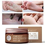 AJUMKER Olio per cavalli Crema per piedi Crema per la cura dei piedi Idratante per prurito...
