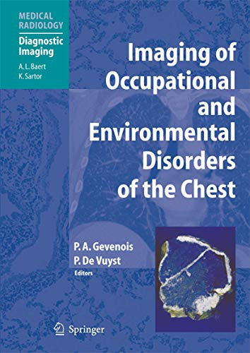 Imaging of Occupational and Environmental Disorders of the Chest (Medical Radiology)