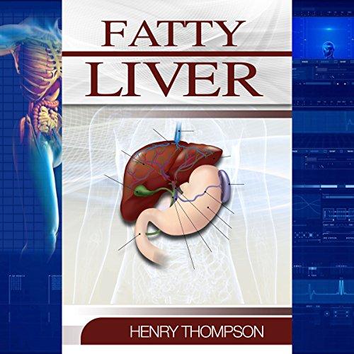 Fatty Liver audiobook cover art