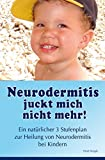 Neurodermitis juckt mich nicht mehr!: Ein natürlicher 3-Stufenplan zur Heilung von Neurodermitis bei Kindern