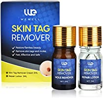 Wewell Skin Tag Removal Skin Tag & Repair Lotion Set, Easy Skin Tag Removal Skin Tags, and moles, Safe Fast & Effective