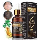 Hair Growth Serum, Hair Growth Essence Oil, Hair Growth Treatment, Stops Hair Loss