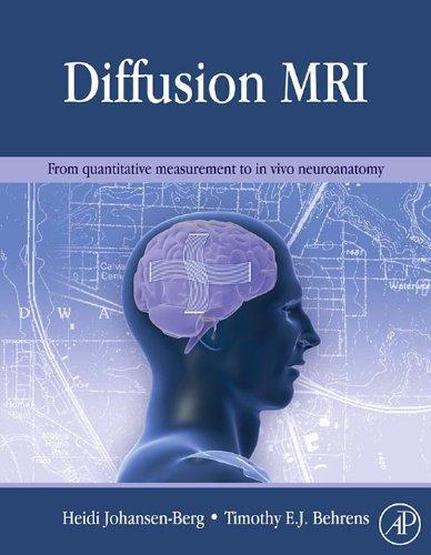 Diffusion MRI: From quantitative measurement to in-vivo neuroanatomy (English Edition)
