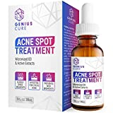 Best Acne Treatment For Adults - GENIUS Acne Spot Treatment Serum for Acne Prone Review