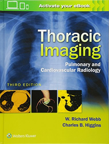 Compare Textbook Prices for Thoracic Imaging: Pulmonary and Cardiovascular Radiology Third Edition ISBN 9781496321046 by Webb, W. Richard,Higgins, Charles B.