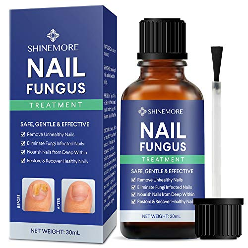 Nail Fungal Treatment, EXTRA STRONG Finger & Toenail Fungal Treatment, Restores Discolored & Damaged Nails, Cure Athlete's Foot & Infected Nails with Our Fungal Treatment 30ml.