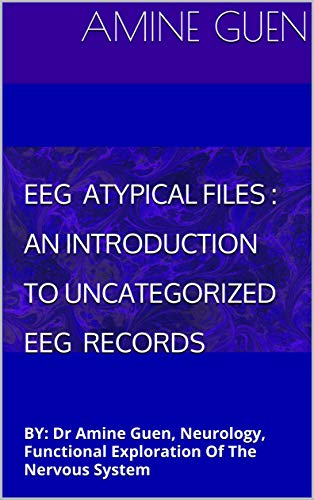 EEG ATYPICAL FILES: AN INTRODUCTION TO UNCATEGORIZED EEG RECORDS: BY:     Dr Amine Guen, Neurology, Functional Exploration Of The  Nervous System (English Edition)