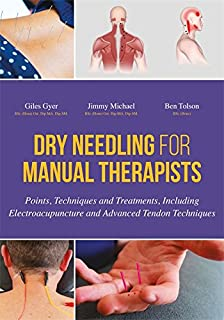 Dry Needling for Manual Therapists: Points, Techniques and Treatments, Including Electroacupuncture and Advanced Tendon Techniques (English Edition)