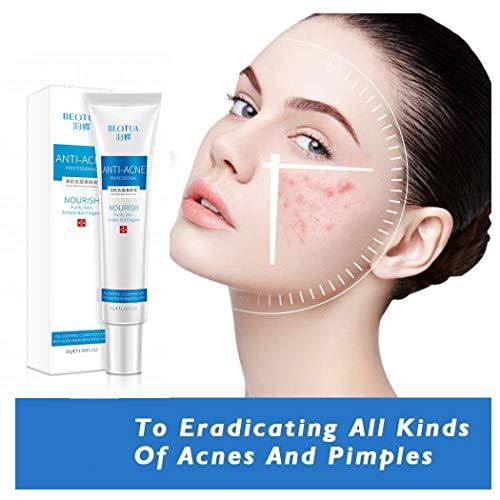 ZEWAN 2 Stück Akne Mark Fading Cream, Hautreparaturgel, Narbenentfernungsgel für den Gesichtskörper, Akne Pits, Pickelnarbe, Fleckenentfernungscreme für Frauen Männer