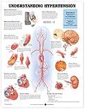 Comprensión Hipertensión
