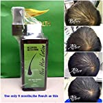 Beauty Shopping Neo Hair Lotion Herbs 100% Natural Treatment Spray STOP Hair Loss Root Nutrients