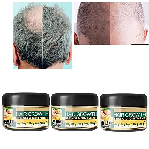 Ginger Hair Growth Cream,Ginger Germinal Oil,Promotes Hair Growth, Ginger Hair Growth Serum,Ginger Hair Growth Ointment Moisturizing Scalp Massage Hair Follicle (3PCS)