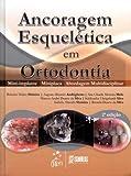 Ancoragem Esquelética em Ortodontia - Mini-implante - Miniplaca - Abordagem Multidisciplinar