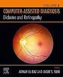Diabetes and Retinopathy (English Edition)