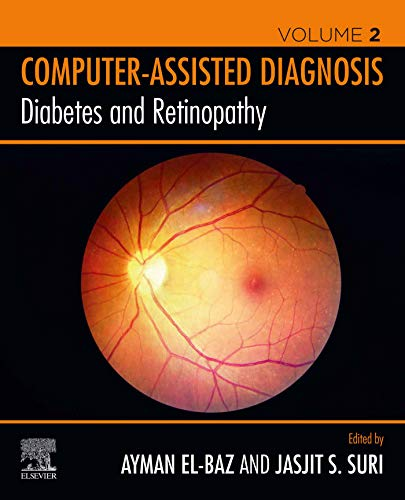 Diabetes and Retinopathy (Computer-Assisted Diagnosis) (English Edition)