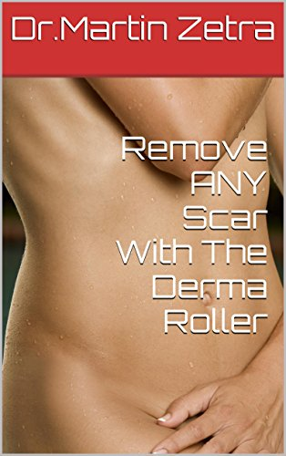 Remove ANY Scar With The Derma Roller