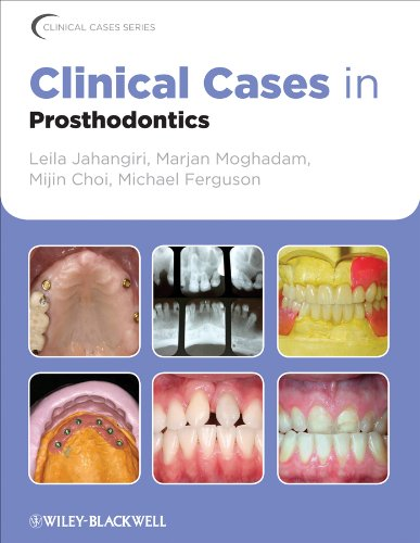 Clinical Cases in Prosthodontics (Clinical Cases (Dentistry) Book 9) (English Edition)