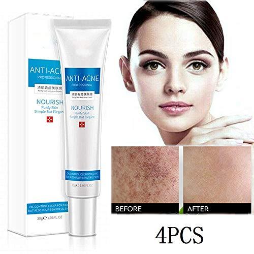 KGIDK Crema de eliminación de Manchas, removedor de Tratamiento Melasma, Crema eliminación pecas, removedor de hiperpigmentación Facial para acné, espinillas, Cicatrices, Manchas oscuras (4 PCS)