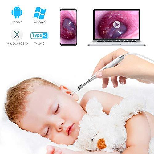 Anykit Otoskop, Endoskop für Ohr Otoskopie, Otoskopkamera mit 3,9 mm ultradünner Kameralinse, Ohrenschmalz entfernen, 6 dimmbare LEDs für Erwachsene Kinder, kompatibel mit Android, Windows und MacBook