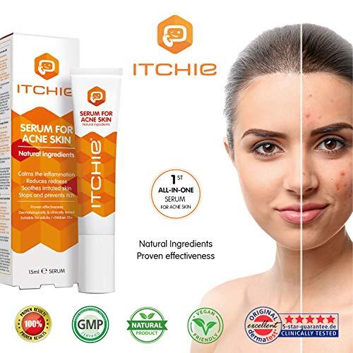 ITCHIE Sérum pour la peau acnéique - Résultats concluants - Traitement de l'acné - Traitement localisé - Calme l'inflammation - Réduit les rougeurs - Apaise la peau irritée – Anti-démangeaisons