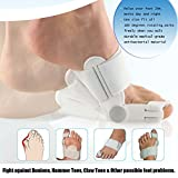 Aokey 2PCS/pair Bunions Pain Relief Cushion Corrector Splint Treatment...