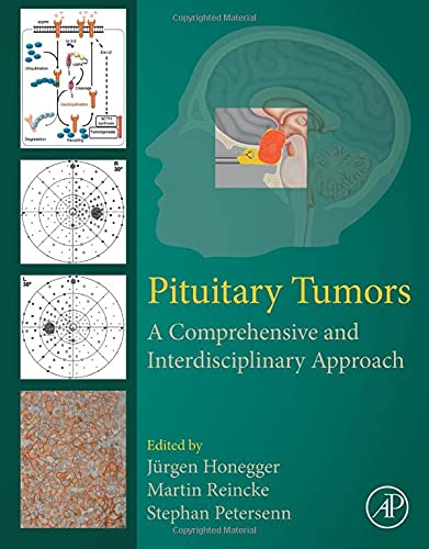 Pituitary Tumors: A Comprehensive and Interdisciplinary Approach