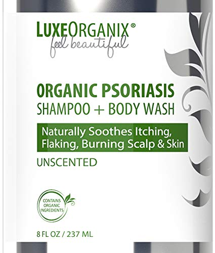 Psoriasis Shampoo and Scalp Treatment: Soothes Itching, Flaky, Burning Scalp. 72% Organic, Scalp Treatment For Dry Itchy Scalp. Hydrates While Healing. Perfect Dry Scalp Treatment. LuxeOrganix (8 oz)