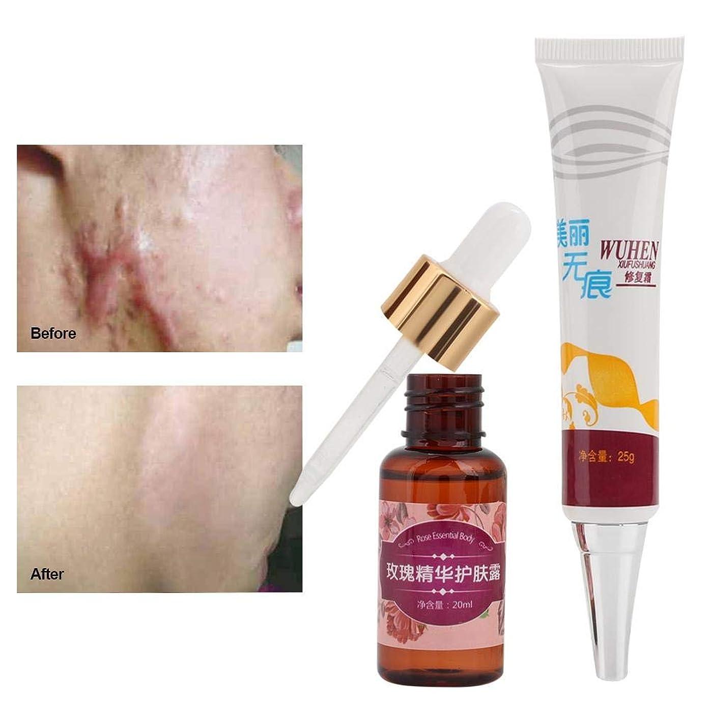 放射する名声慎重に傷跡の除去、傷跡の傷跡の除去クリームと顔と体のための超輝く汚れのない油の傷跡除去